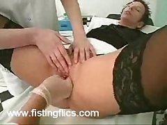 Unusual fisting perversions